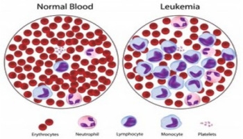 Leukemia / Blood Cancer